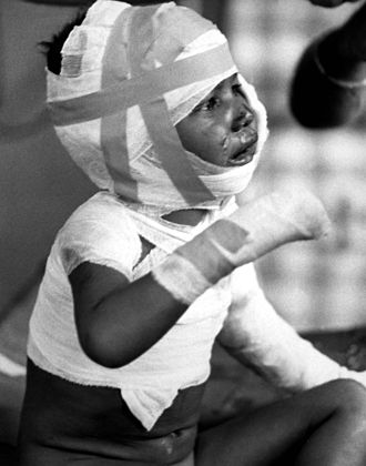 Communist terrorism - Infant victim of Dak Son massacre