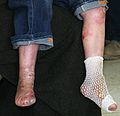 Iraqi-boy-epidermolysis bullosa-090216-M-8096M-00-legs.jpg