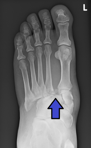 photograph relating to Printable X Rays named Lisfranc destruction - Wikipedia