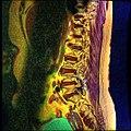 Lumbosacral MRI case 05 04.jpg