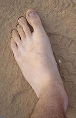 My left foot.jpg