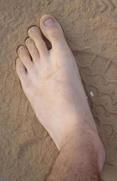 File:My left foot.jpg