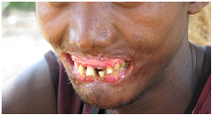 Necrotizing periodontal diseases - Cancrum oris (noma) in an adult male. Note destruction of orofacial tissues.