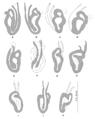 Parasite140133-fig3 Pseudorhabdosynochus regius (Diplectanidae) Sclerotised vaginae.png