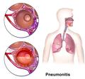 Pneumonitis.png
