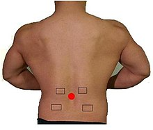 Posterior view of lumbar region for electrostimulation electrode placement.jpg