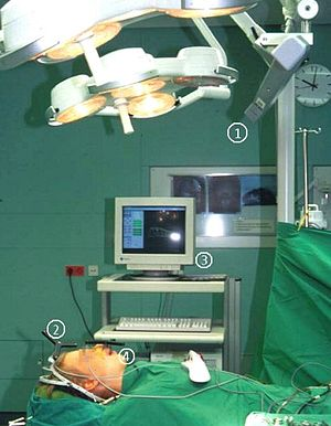 Bone segment navigation - Using the SSN in the operating theatre; 1=IR receiver, 2 and 4=IR Reference devices, 3=SSN-Workstation