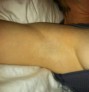Armpit fetishism - Shaved armpit with little amounts of stubble are also popular among the people who are attracted to the female armpit