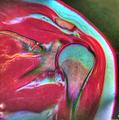 Shoulder MRI 113638 rgbca PDFS T2 T1 35F.png
