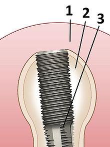 Zahnimplantat Probleme Jahre später