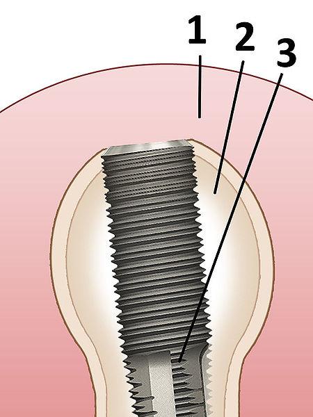File:Zahnimplantat.jpg