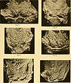 Anatomische Hefte (1913) (17984996400).jpg