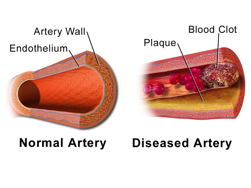 Blausen 0053 Artery NormalvsDiseasedVessel