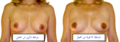 Breast changes during pregnancy 1-ar.png