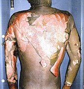 Autopsy photograph of Rainey's back.