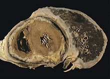 mesothelioma wikipediadiffuse pleural mesothelioma with extensive involvement of the pericardium