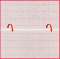 Flipped Posterior STEMI ECG.png