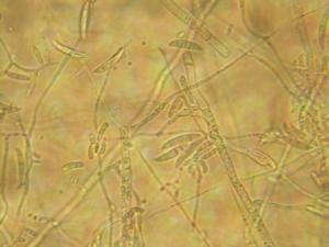 Fusarium - Fusarium macroconidia