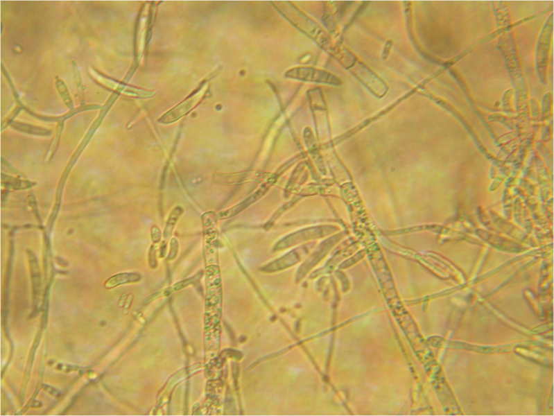 File:Fusarium conidiophores and macroconidia 160X.png