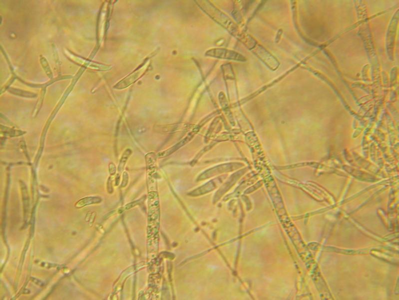 File:Fusarium conidiophores and macroconidia 160X.png