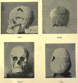 Beit Khallaf - Possible skull of Pharaoh Sanakht (Hen Nekht) from mastaba K2 at Beit Khallaf.