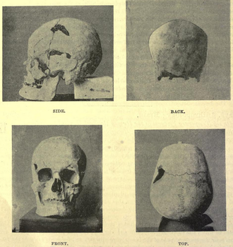 Sanakht - Possible skull of Pharaoh Sanakht from mastaba K2 at Beit Khallaf.