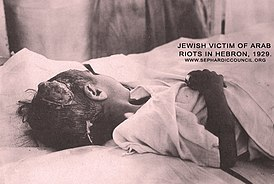 Jewish child victim of Arab riots in Hebron, 1929.jpg
