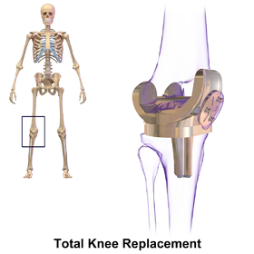 Knee Replacement Wikipedia