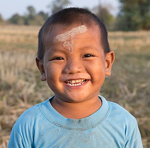 Little boy with deciduous teeth and stains of mud and marker on his forehead, laughing in the countryside of Don Det, Laos