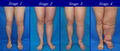 Lower Limb Lymphedema.png