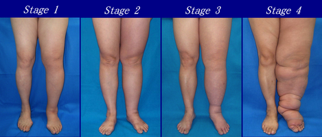 Lymphedema - Wikipedia
