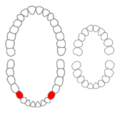 Mandibular first premolars01-01-06.png