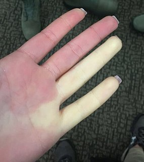 Raynaud syndrome medical condition in which spasm of arteries cause episodes of reduced blood flow