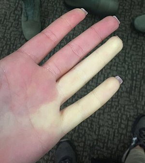Raynaud syndrome on female airman's hand.jpg