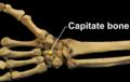 RightHumanAnteriorDistalRadiusUlnaCarpals - Capitate bone.png