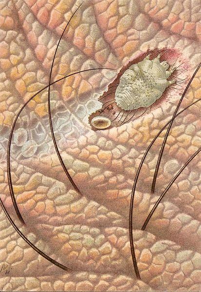 Zákožka svrabová - roztoč žijúci v koži živočíchov, napáda aj človeka