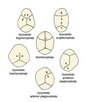 Craniofacial surgery - Fig. 2 Skull deformities associated with single suture synostosis