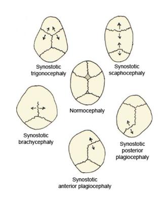 Craniofacial surgery - Fig. 2 Skull deformities associated with single suture synostosis