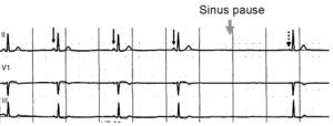 Normal sinus rhythm, with solid black arrows p...