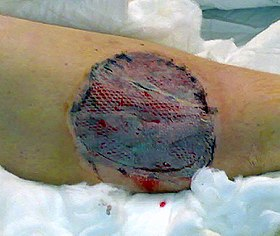 Skin graft treated with vacuum assisted closure for five days.jpg