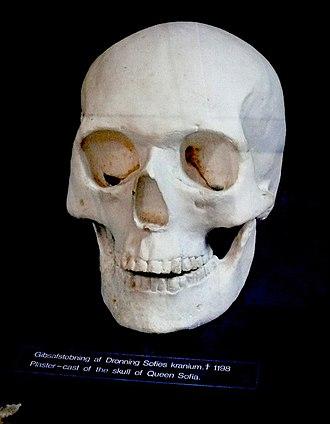 Sophia of Minsk - Plaster cast of her skull