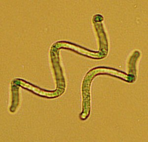 "Soda lake - Cyanobacteria of the genus Arthrospira (synonymous to ""Spirulina"")"