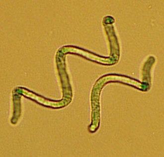 "Soda lake - Cyanobacteria of the genus Arthrospira (synonymous to ""Spirulina"")"