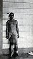 Standing man, full-length front view, with elephantiasis of Wellcome V0029702.jpg