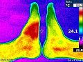 Thermal effects of Insect bite by Volkan Yuksel IR001666.jpg