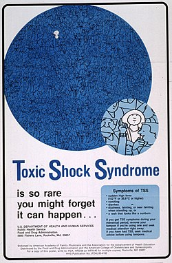 Toxic shock syndrome is so rare you might forget it can happen - (6946668685).jpg