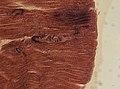 Trichinella spiralis (YPM IZ 095204).jpeg