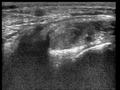 Ultrasound Scan ND 084648 0853360 cr.png
