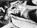 Victim of Atomic Bomb 002.jpg