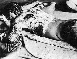 Японский мальчик, верхняя часть тела которого не была закрыта во время взрыва